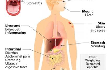 מהי מחלת קרוהן
