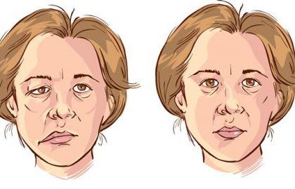 פציאליס – שיתוק עצב הפנים