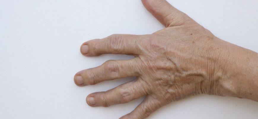 דלקת מפרקים ניוונית (אוסטאוארטריטיס)